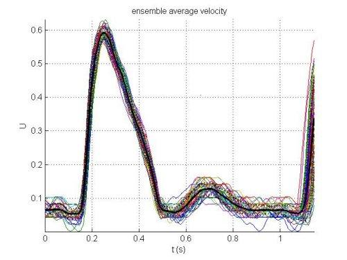 3  Ensemble averaging